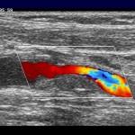 barevný Doppler stenózy vnitřní karotidy
