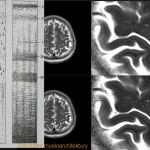 Zobrazení mikrostruktury mozkové tkáně - v porovnání s histologickým schématem jednotlivých vrstev(vlevo)