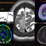 MR spektroskopie jako pokročilá technika umožňuje detailní rozbor složení zvolených okrsků mozkové tkáně. Tímto způsobem lze s vysokou přesností stanovit například charakter a rozsah nádorového postižení.