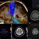 Funkční vyšetření mozku s možností zobrazení různých mozkových center (nejčastěji pohybové, řečové či smyslové) a drah spojujících tato centra a ostatní orgány. Nahoře vlevo: MR traktografie. Menší obrázky: zobrazení mozkových center (barevné okrsky) v kombinaci s jinými technikami (CT či MR).