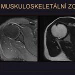 MR je nejkvalitnější metodou pro zobrazení kloubních struktur, zejména chrupavky, vazů a menisků.
