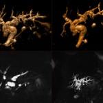 MRCP - zobrazení žlučových cest a vývodu slinivky břišní. Obrázky nahoře: objemové rekonstrukce rozšířené žlučového stromu.