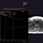 Porovnání křivky sycení kontrastní látkou v tumoru (žlutá) a ve zdravé tkáni (červená).