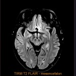 Speciální technika pro zobrazení mozkových lézí.