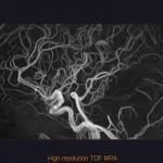 Prostorová rekonstrukce cévního zásobení mozku.