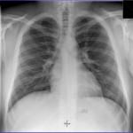 snímek plic muže, bez nálezu